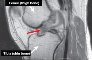 ACL tear on MRI scan